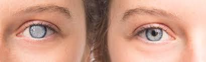 Traitement de la cataracte  en Tunisie prix pas cher
