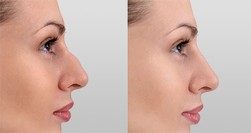 Rhinoplastie: chirurgie du nez