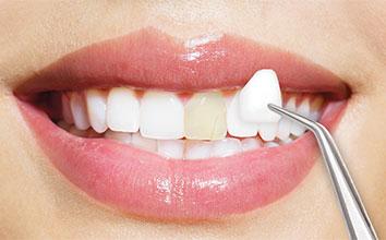 Faccette dentali in Tunisia o Turchia costo e prezzi in Tunisia Turchia Prezzo