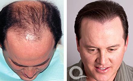 Autotrapianto capelli tecnica FUE Tunisia o Turchia prezzi in Tunisia Turchia Prezzo