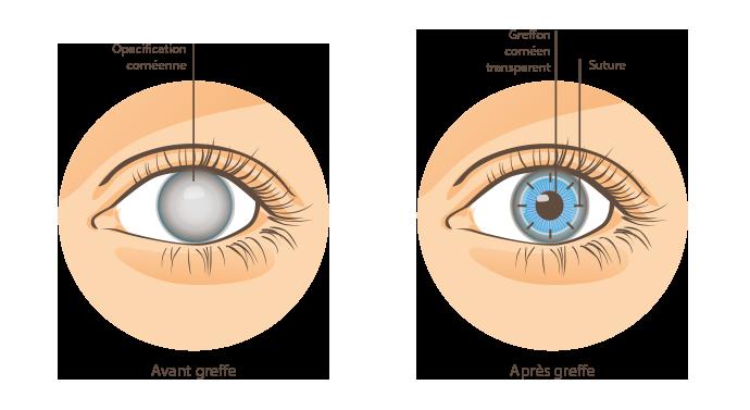 Greffe de la cornée