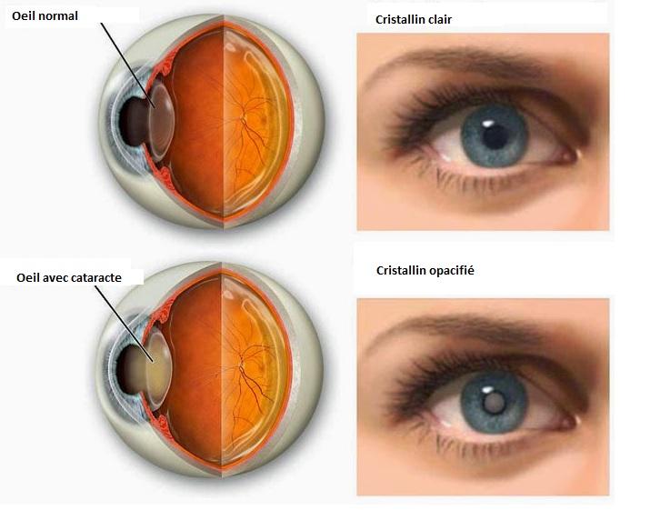 La chirurgie de la cataracte