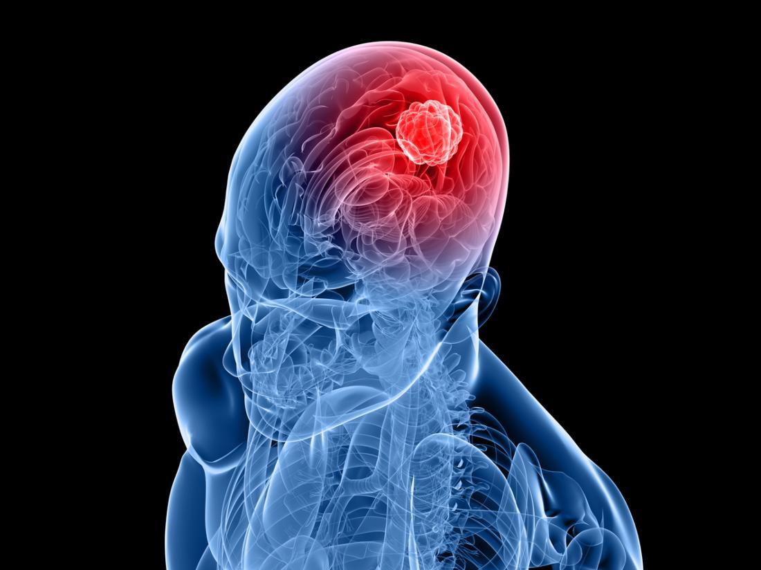 Les tumeurs intracrâniennes