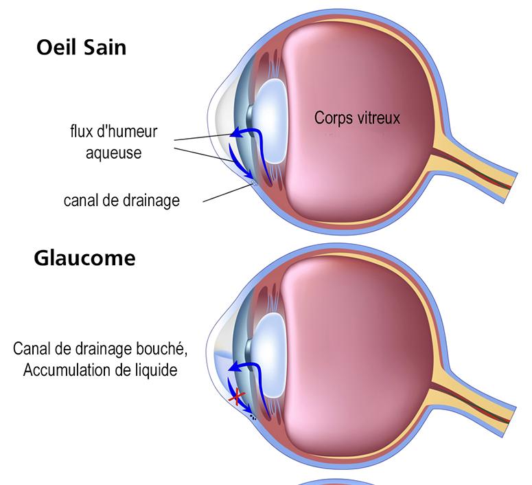 La chirurgie des glaucomes