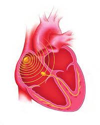 Thérapie de resynchronisation cardiaque