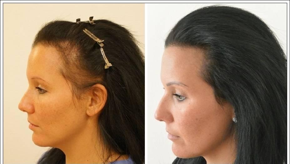 Abaissement de la Ligne de Cheveux Turquie