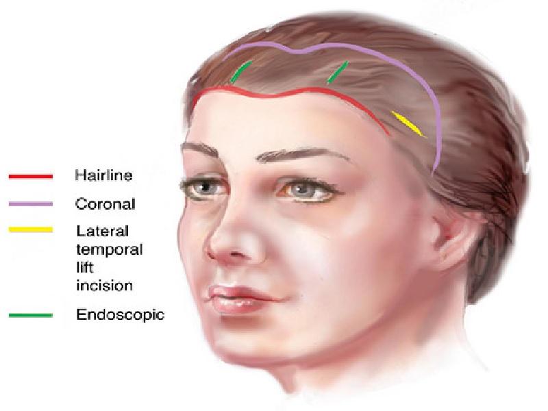 Hairline Lowering 1