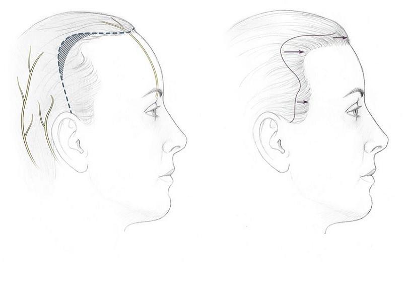Hairline Lowering 0