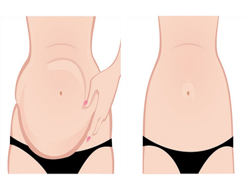 Abdominoplasty (Tummy Tuck) 0
