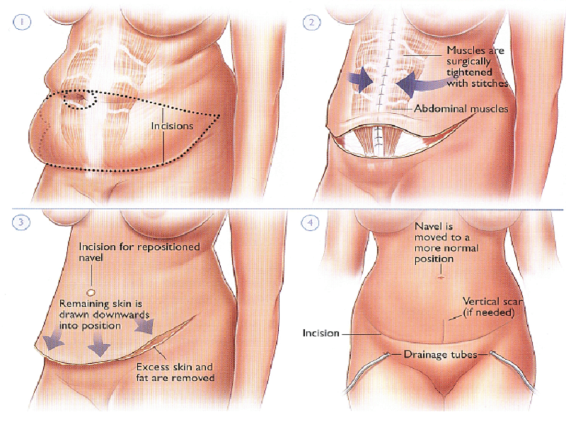 Abdominoplasty (Tummy Tuck) 2 Turkey