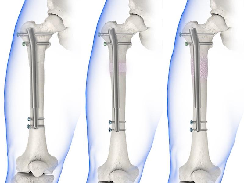 Allongement des jambes 3 Turquie