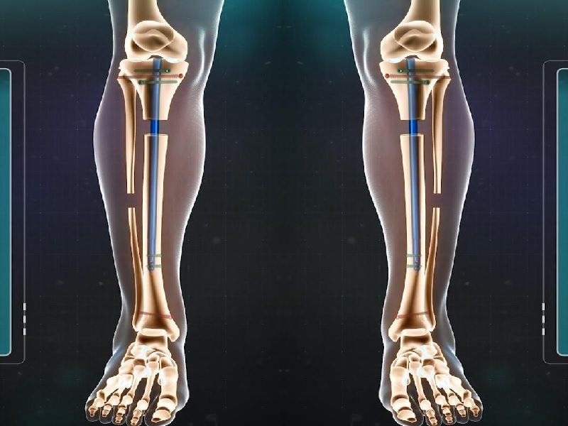 Allongement des jambes 1 Turquie