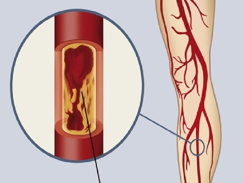 Облитерирующая артериопатия 0 индейка