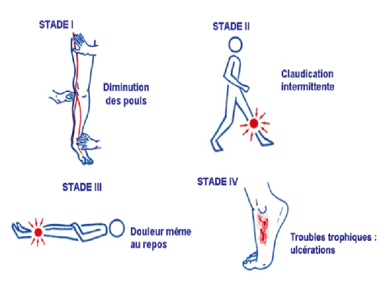 Artériopathie oblitérante 1