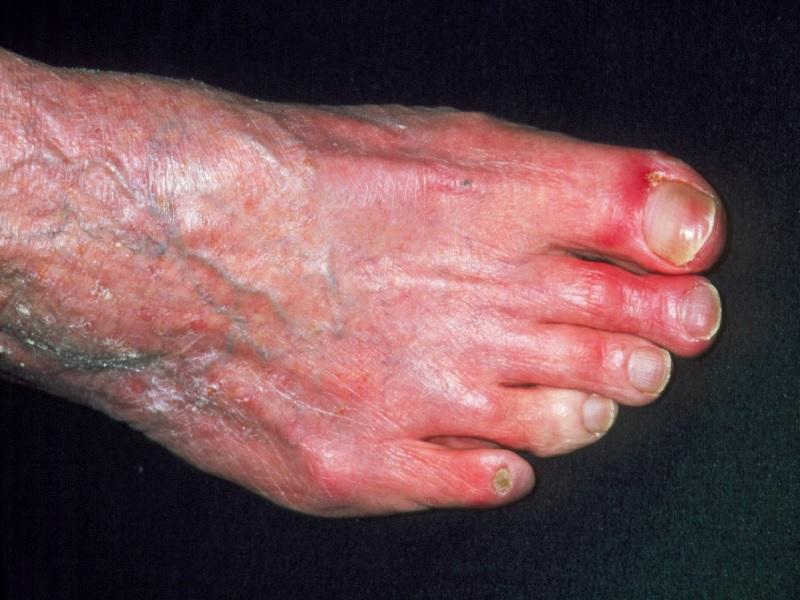 Облитерирующая артериопатия 2 индейка