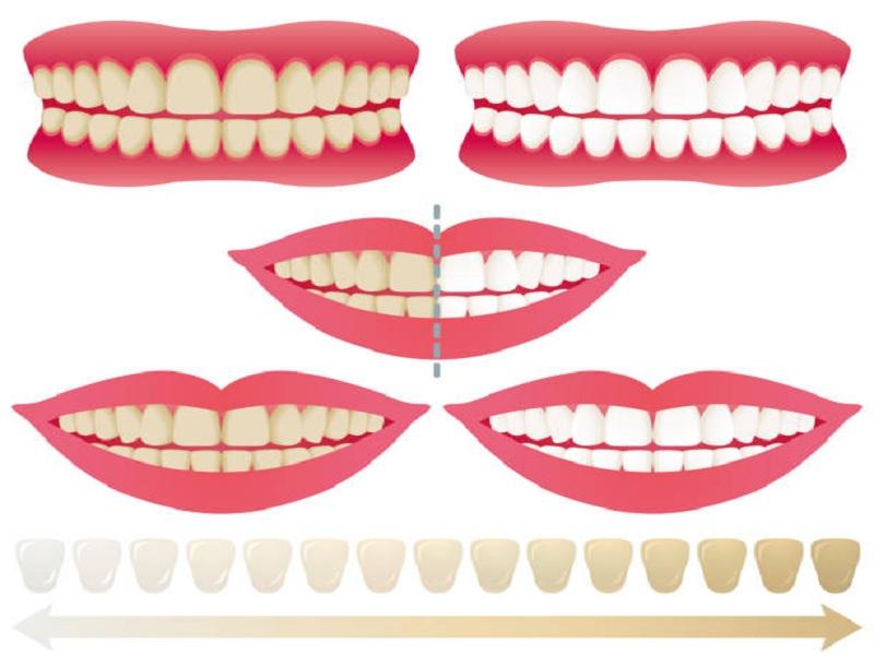 Отбеливание зубов 4 Турция