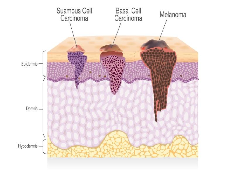 Cancer de la peau 0