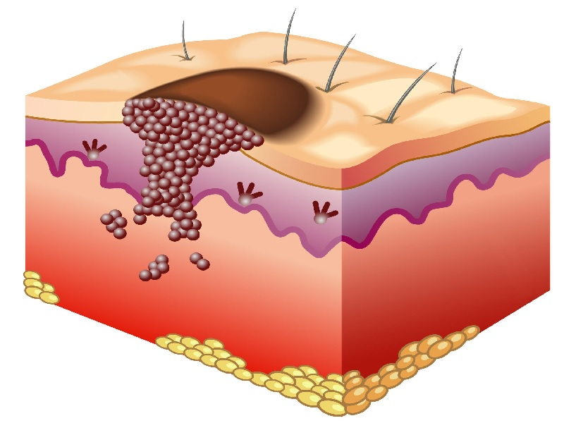 Cancer de la peau 2