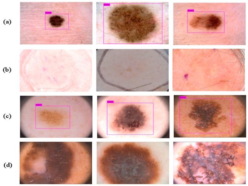 Cancer de la peau 4