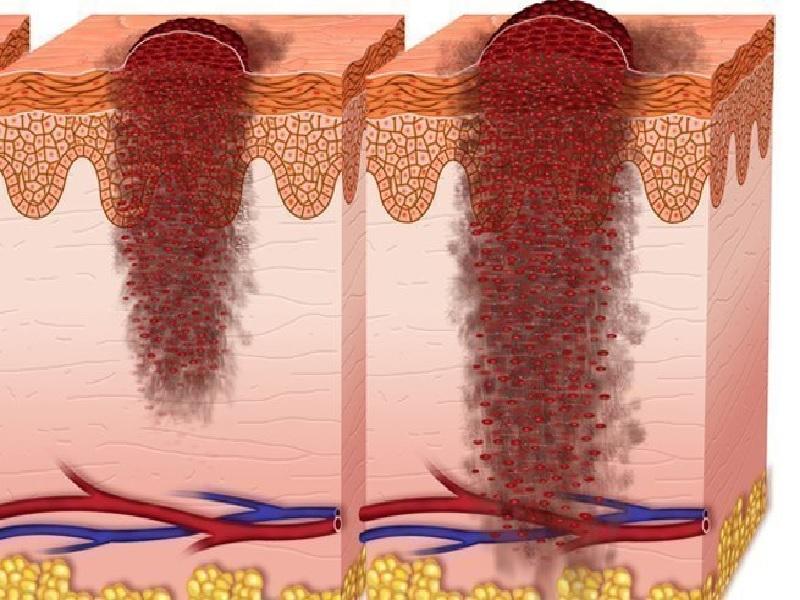 Cancer de la peau 1