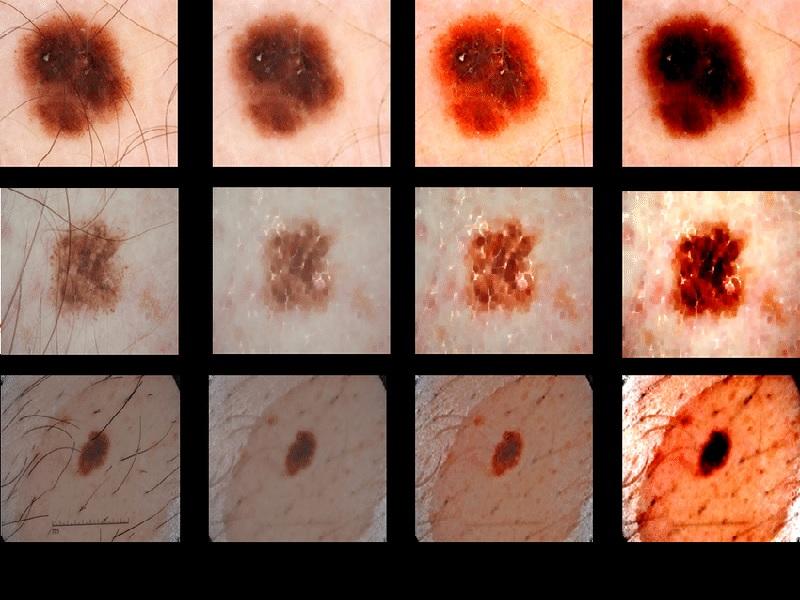 Cancer de la peau 3