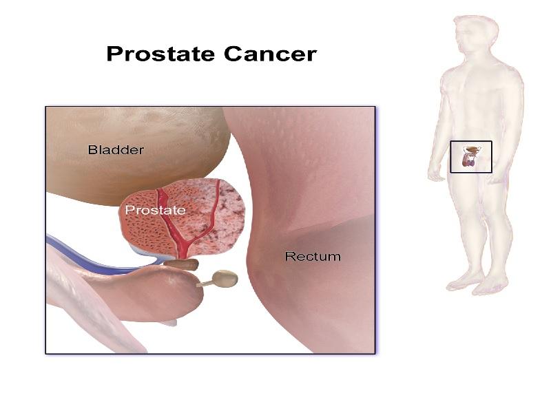 سرطان البروستات 3