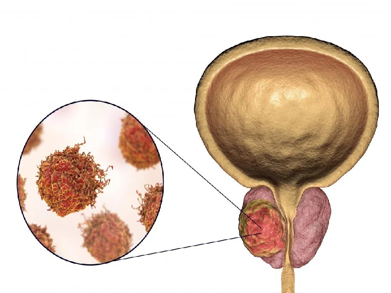 سرطان البروستات 1