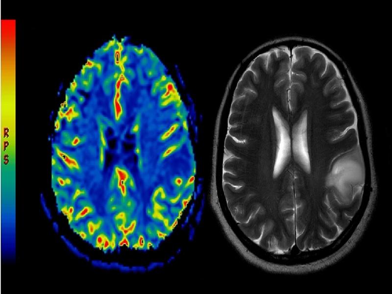 Cancer du Cerveau 2