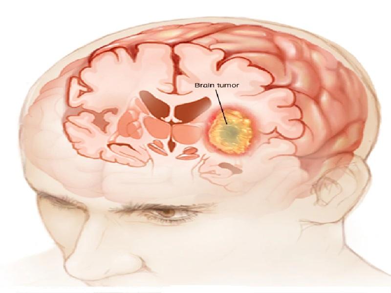 Cancer du Cerveau 4