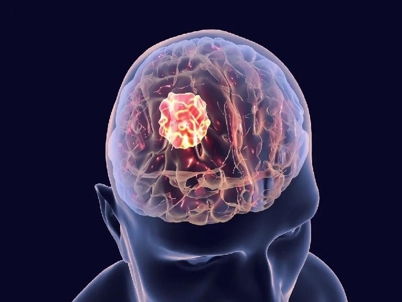 Cancer du Cerveau 1