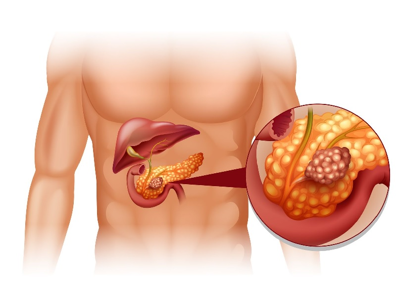 Рак поджелудочной железы 0 индейка