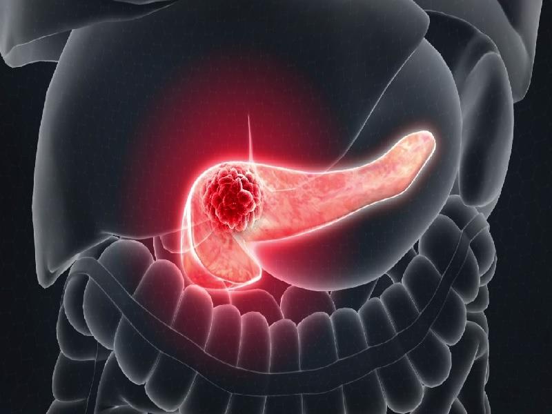 Рак поджелудочной железы 3 индейка