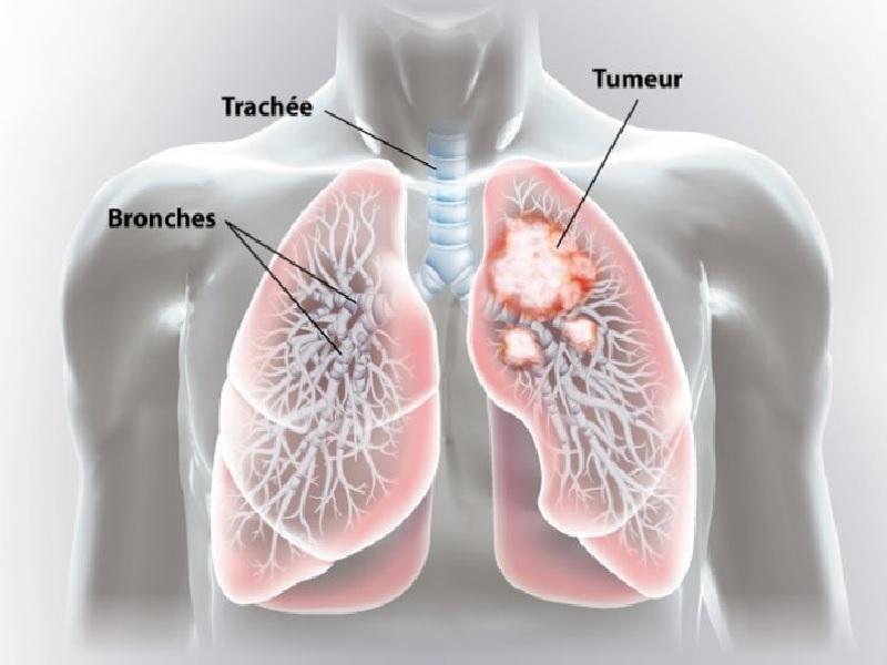 Cancer du poumon 3