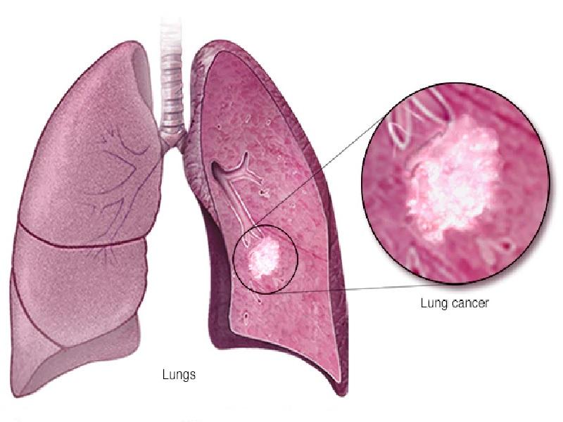 Cancer du poumon 4