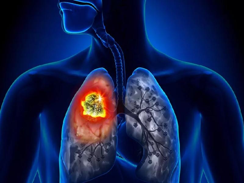 Cancer du poumon 0