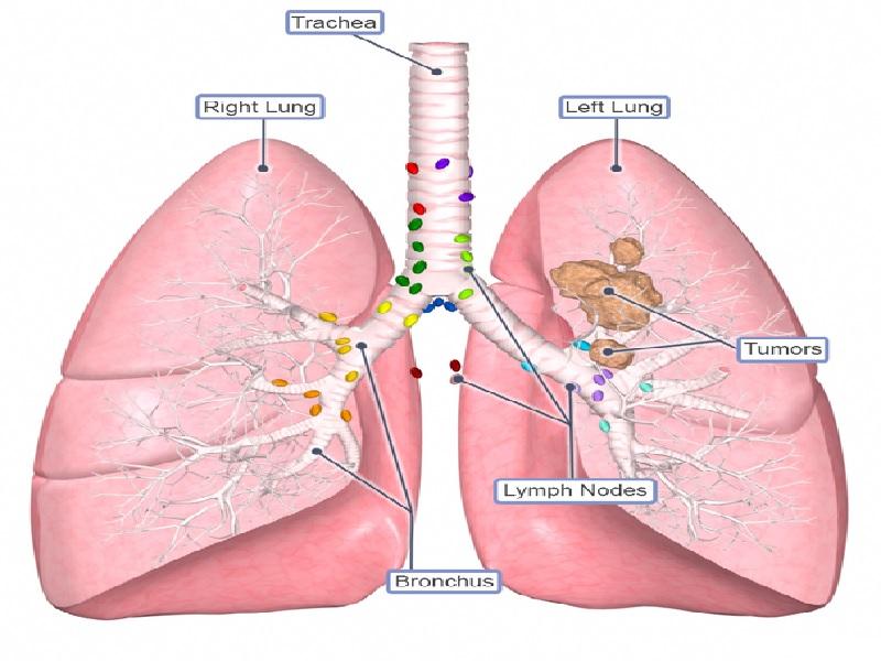 Cancer du poumon 5