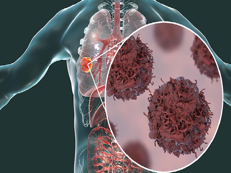 Cancer du poumon 1
