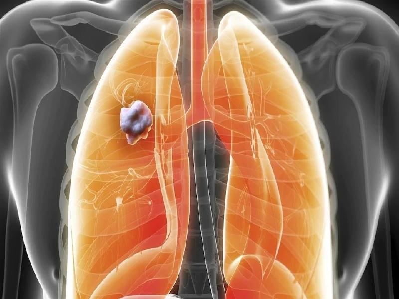 Cancer du poumon 2