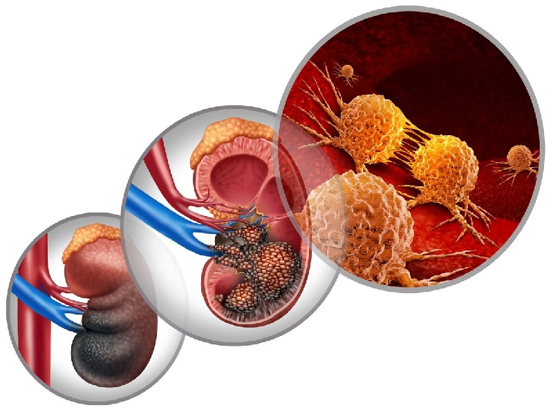 Kidney cancer 0