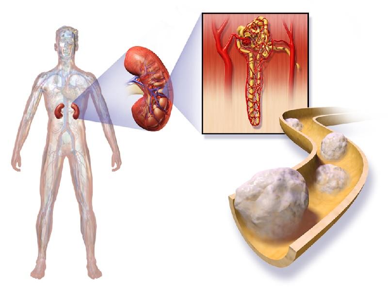 Kidney cancer 2