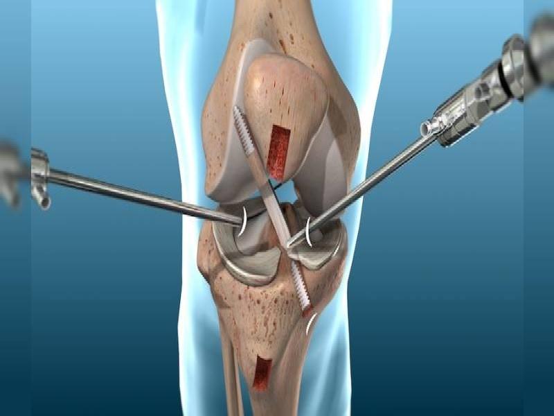 Chirurgie de genou 1 Turquie