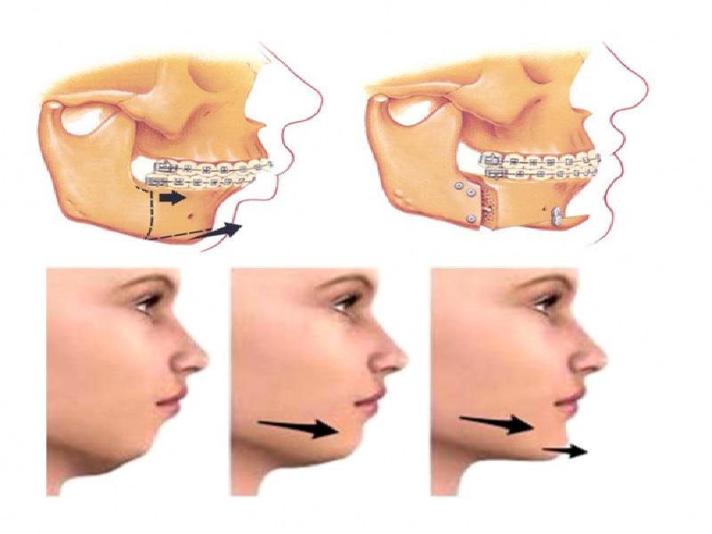 عملية جراحة الفك 1