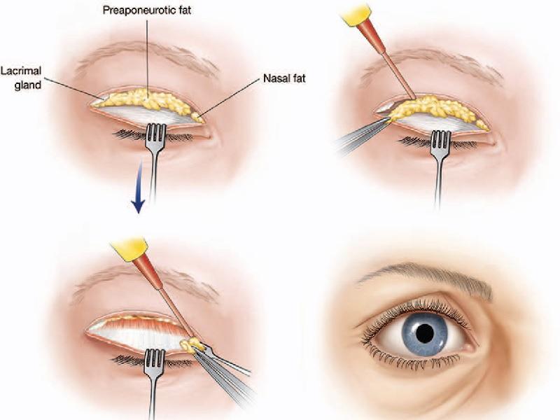 Eyelid surgery 0