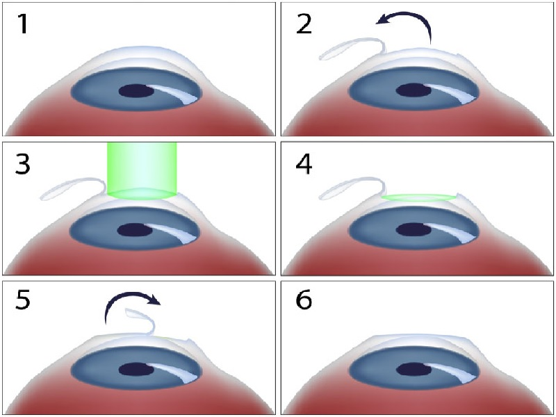 Лазерная хирургия глаза 0 индейка
