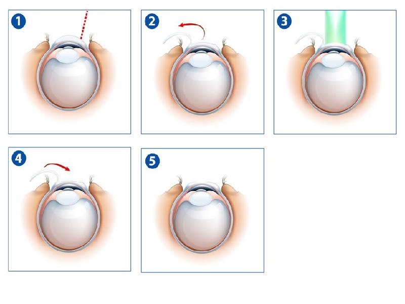 Лазерная хирургия глаза 1 индейка