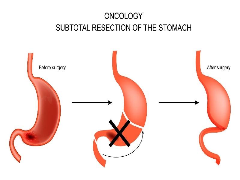 Chirurgie du cancer de l'estomac 3