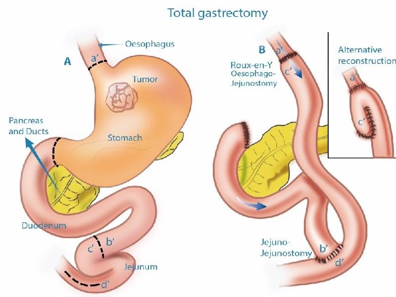 جراحة سرطان المعدة 2