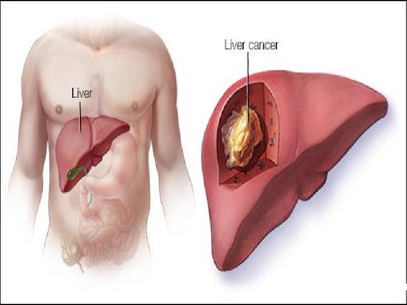 Хирургия рака печени 2 индейка