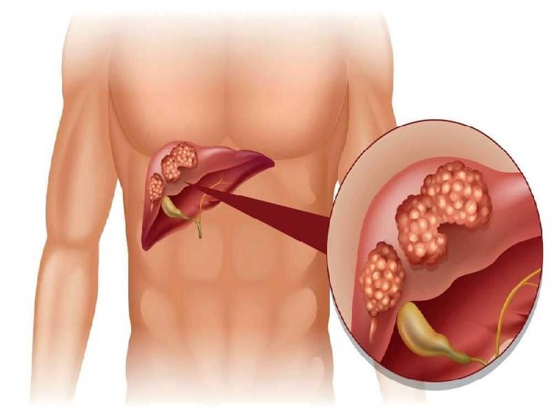 جراحة سرطان الكبد 0