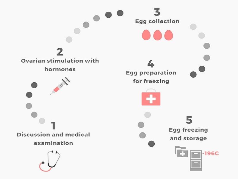 Congélation d'ovocytes 0